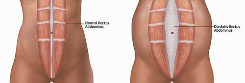 Delte mavemuskler/rectus diastase - hvad er det egentlig?
